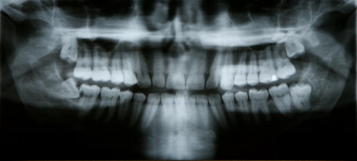 dental-x-ray-3.jpg